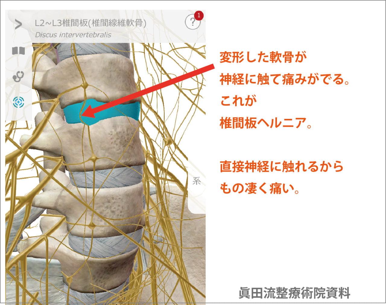 変形した軟骨(椎間板)が、腰骨付近に張り巡らされた神経に触れて痛みがでます。