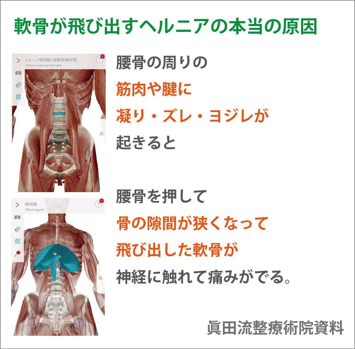 腰骨の位置が変わってしまい 腰骨と腰骨の間にある軟骨が変形したり 飛び出したりしてしまうのです。
