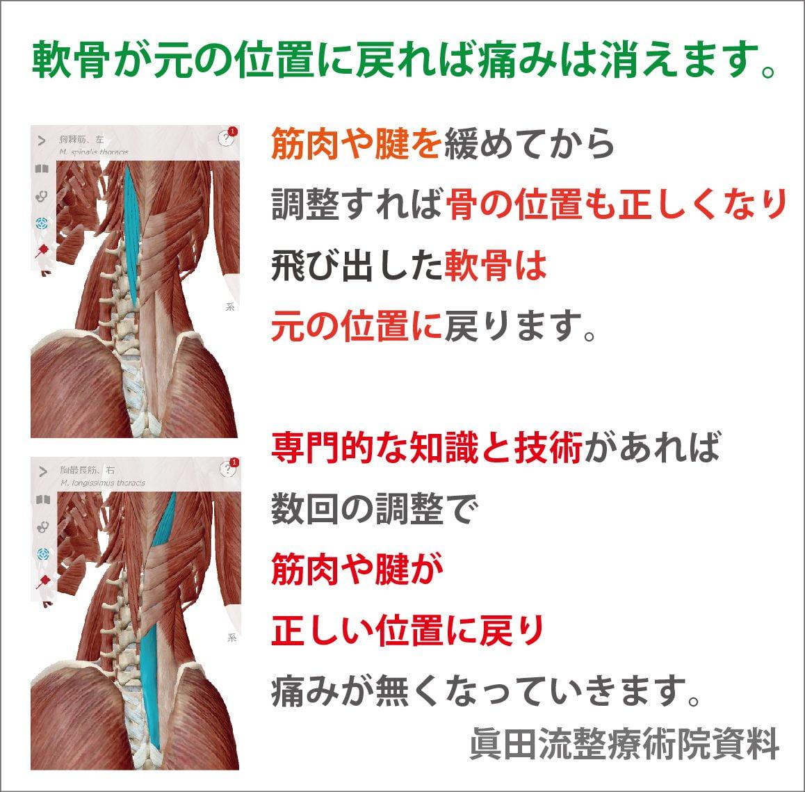 筋肉や腱のコリを緩めて正しい位置に調えると