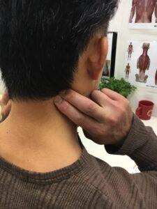 首から肩の痛みを解消1-225x300