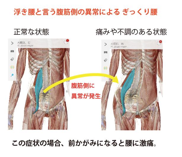 浮腰という腹筋側の異常によるぎっくり腰