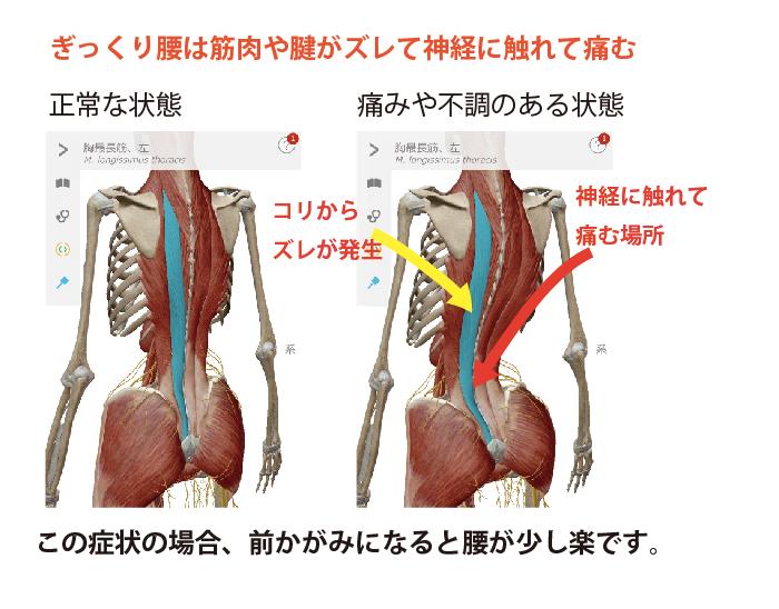 ぎっくり腰は筋肉や腱がずれて神経に触れて痛む