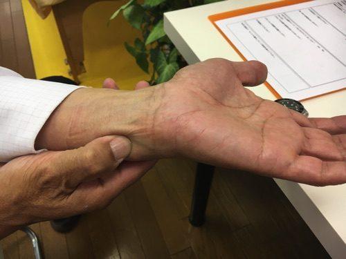 三角線維軟骨複合体損傷と膝の痛みの治療方法1