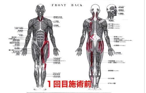 前かがみで腰が痛い方の状態1