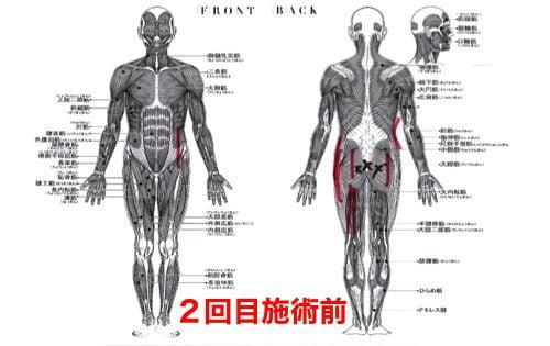 前かがみで腰が痛い方の状態2