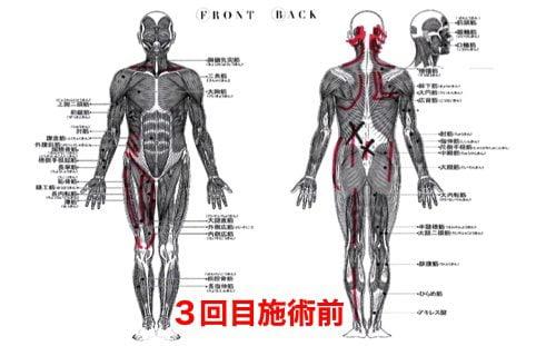 前かがみで腰が痛い方の状態3