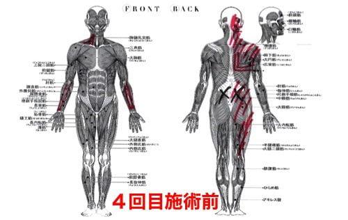 前かがみで腰が痛い方の状態4