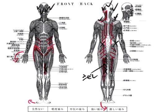 今、とても多い慢性的な腰痛の原因と改善施術の内容