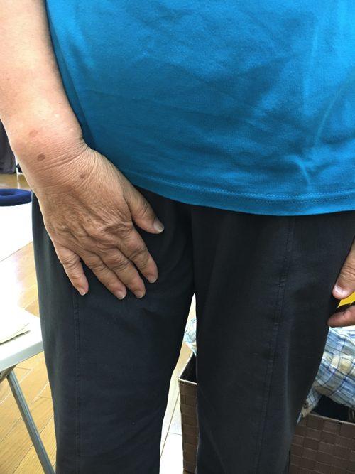 軟骨-椎間板が飛び出したヘルニアの腱引きによる改善施術で痛み解消5