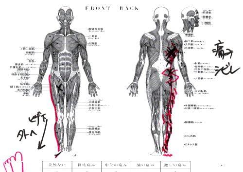 軟骨-椎間板が飛び出したヘルニアの腱引きによる改善施術で痛み解消8