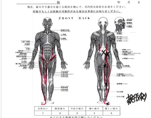 ブロック注射が効かない椎間板ヘルニアの治療10