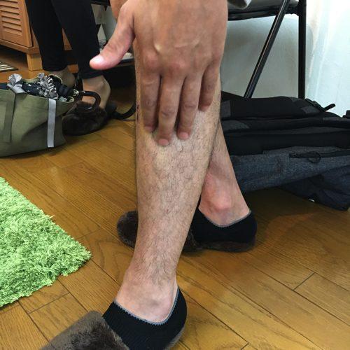 ブロック注射も効かない椎間板ヘルニアの腰の痛みと足の痺れを治すには6