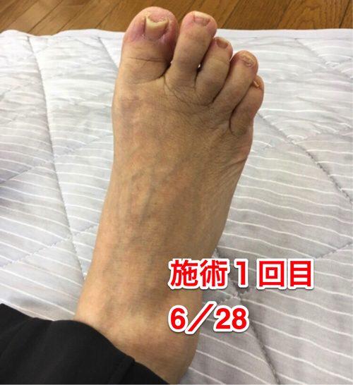 ヘルニアの治療と再発防止は足の指の曲がりを治す事も大切4