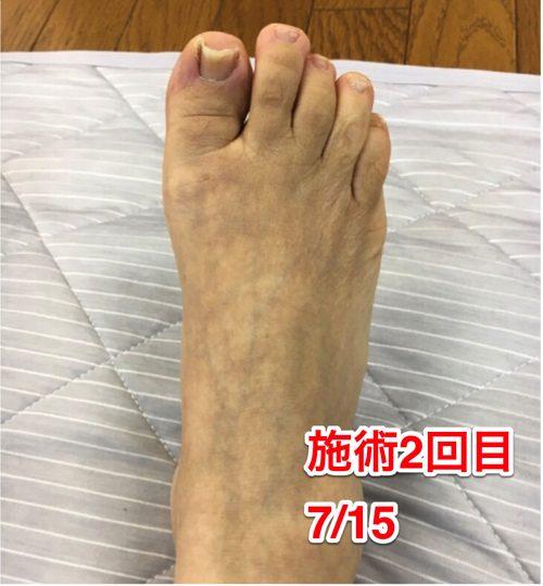 ヘルニアの治療と再発防止は足の指の曲がりを治す事も大切5
