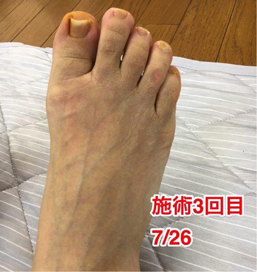 ヘルニアの治療と再発防止は足の指の曲がりを治す事も大切6-1