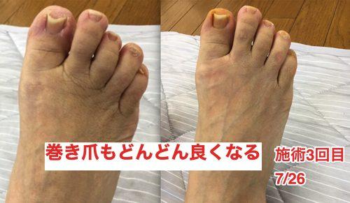 ヘルニアの治療と再発防止は足の指の曲がりを治す事も大切7