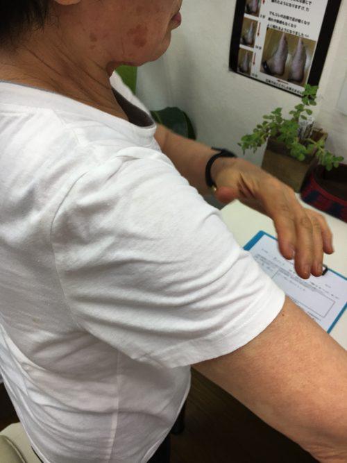 五十肩-腕を上げる際に肩が痛い-治し方2