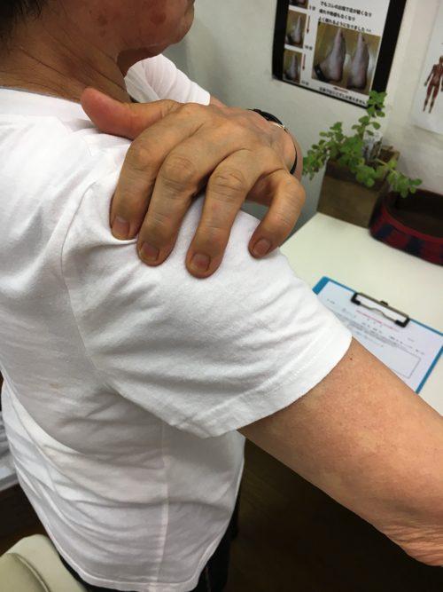 五十肩-腕を上げる際に肩が痛い-治し方3