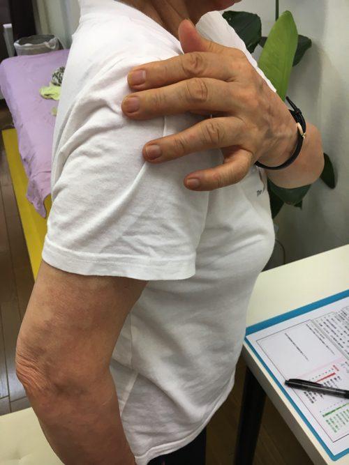 五十肩-腕を上げる際に肩が痛い-治し方4
