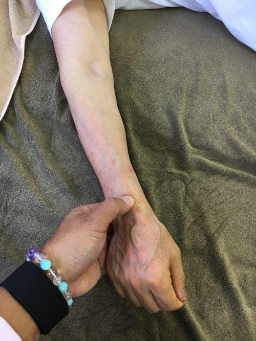 五十肩-腕を上げる際に肩が痛い-治し方5