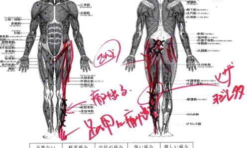 椎間板ヘルニア-腰の痛みと足のシビレを治す整体11