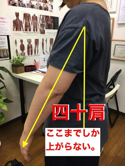 腕が痛くて上がらない四十肩の治し方1-1