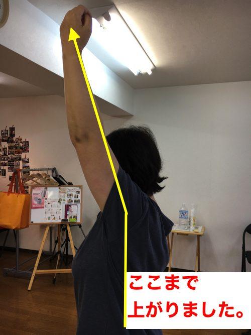 腕が痛くて上がらない四十肩の治し方2-1