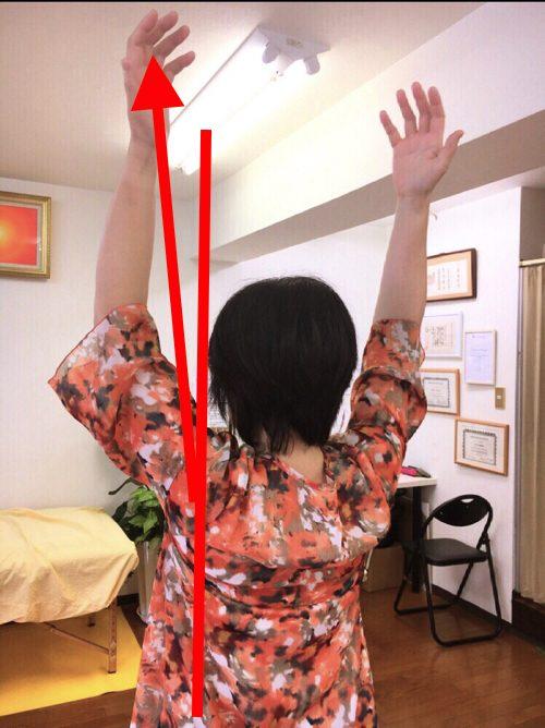 腕が痛くて上がらない四十肩の治し方2