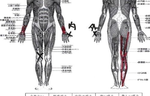 膝に水がたまり痛い-正座が出来ない-膝の治療方法6