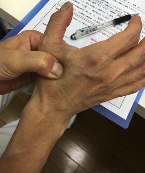 すべり症-腰の痛みと足のシビレの治療法4-e1502508498190