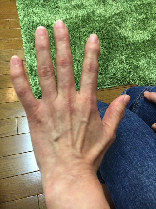ばね指の原因と治療方法a1