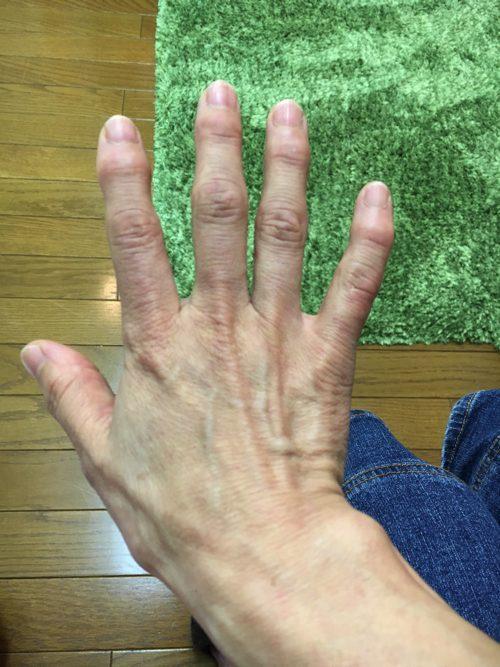 ばね指の原因と治療方法a2