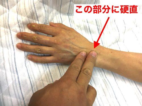 ばね指の原因と治療方法a3-1