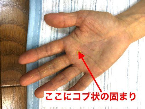 ばね指の原因と治療方法a4-1