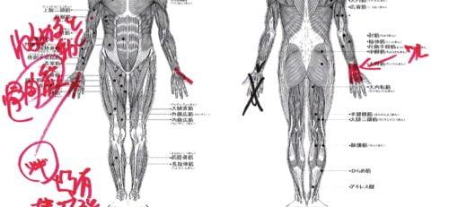 ばね指の原因と治療方法a7