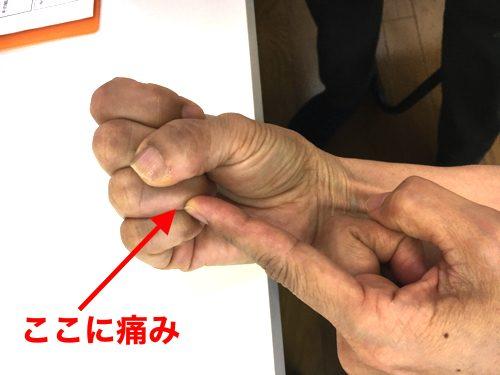 ばね指の原因と治療方法b1