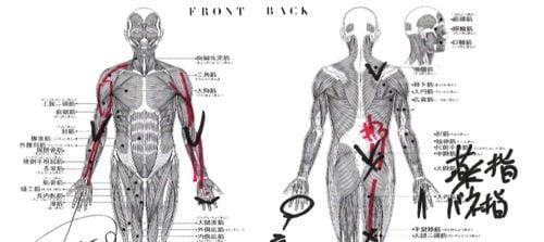ばね指の原因と治療方法b5