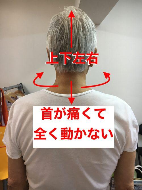 首が痛くて動かない-寝違い-筋違い-治療5a