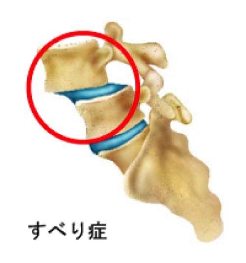 1すべり症-腰の痛みと足のシビレの治療法1