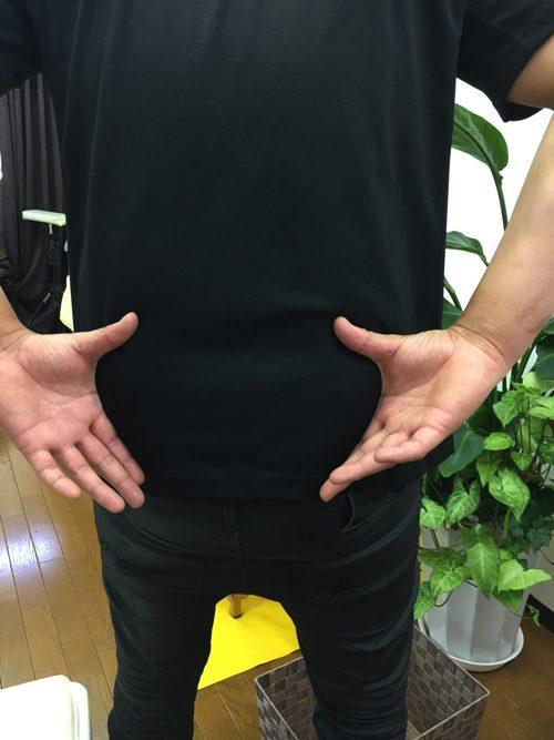 ぎっくり腰-治療-すぐに治る広島の腰痛専門整体院の実例1