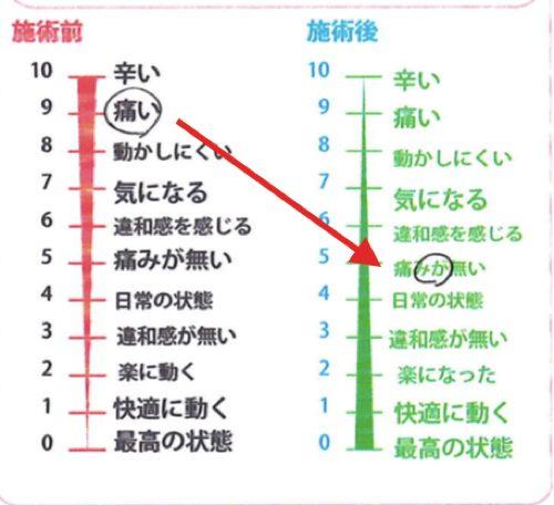 広島「ぎっくり腰」の治療で有名な整体院の治った例0926-5
