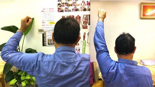 広島-四十肩・五十肩の治療で有名な整体院-治った例10
