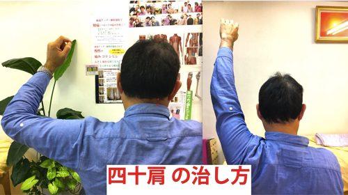 広島-四十肩・五十肩の治療で有名な整体院-治った例11