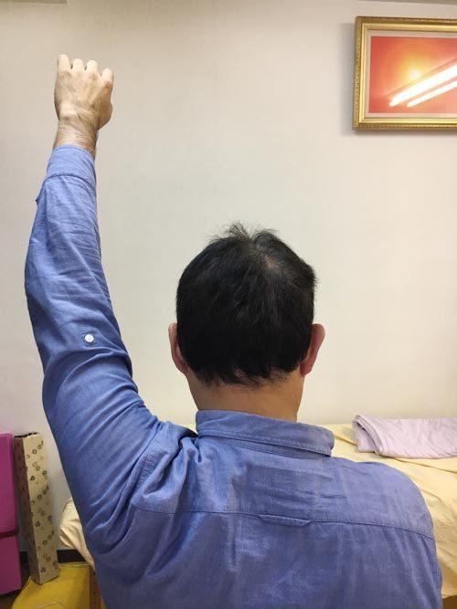 広島-四十肩・五十肩の治療で有名な整体院-治った例6