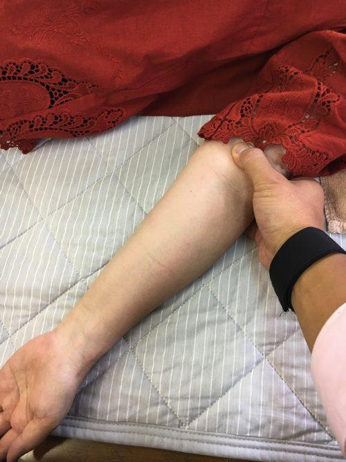 広島-四十肩・五十肩の治療で治ると有名な整体院の実例4