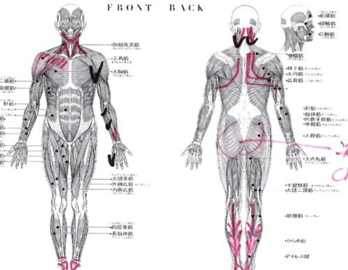 広島-四十肩・五十肩の治療で治ると有名な整体院の実例6