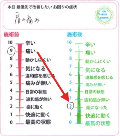 広島-四十肩・五十肩の治療で治ると有名な整体院の実例7