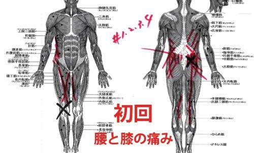 広島-椎間板ヘルニア治療-ヘルニアが治ると有名な整体院5
