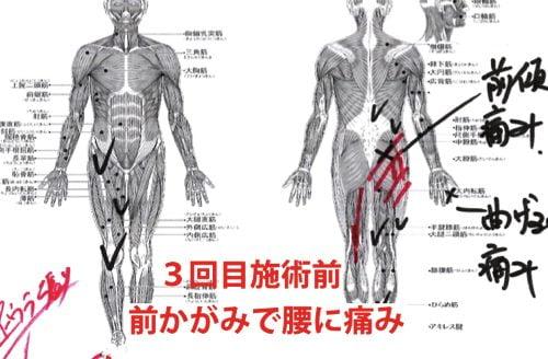 広島-椎間板ヘルニア治療-ヘルニアが治ると有名な整体院7