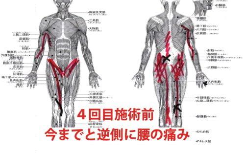 広島-椎間板ヘルニア治療-ヘルニアが治ると有名な整体院8